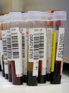 Ermittlung des Chronotyps über neuen Bluttest